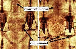 裹尸布上頭部和側面的傷痕