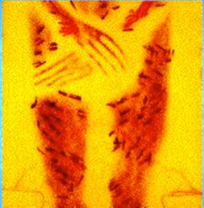 pic1-1